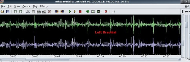 left_brachial
